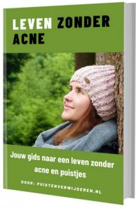 leven zonder acne